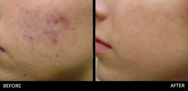 Microneedling before & after at Semblance Medspa in Albany, NY 1