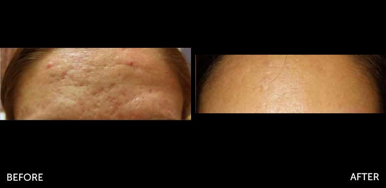Microneedling before & after at Semblance Medspa in Albany, NY 2