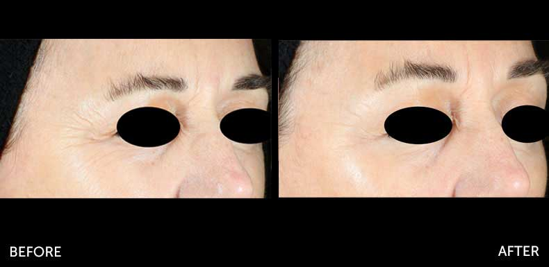 Microneedling before & after at Semblance Medspa in Albany, NY 3