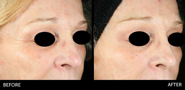 Microneedling before & after at Semblance Medspa in Albany, NY 4